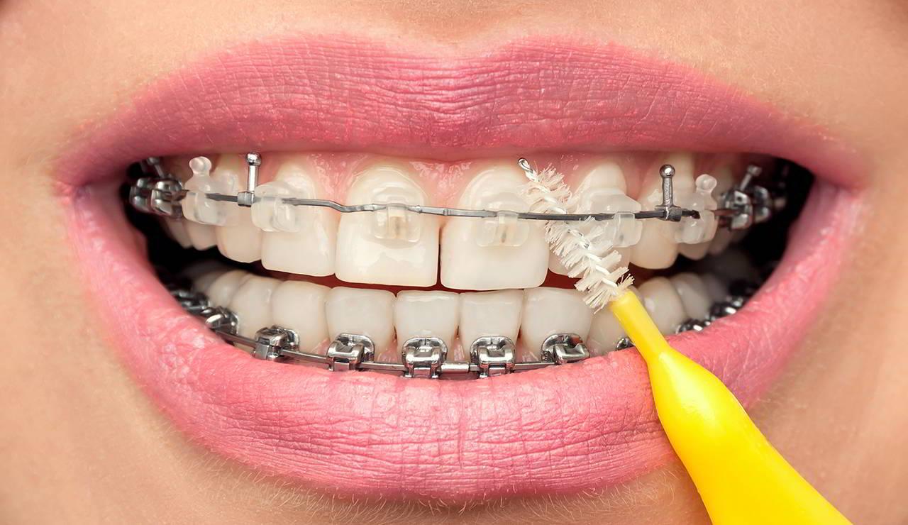 Jak wygląda leczenie ortodontyczne