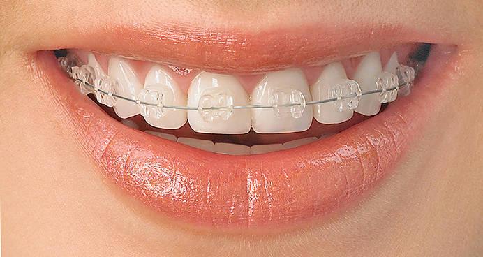 Czym zajmuje się ortodoncja?